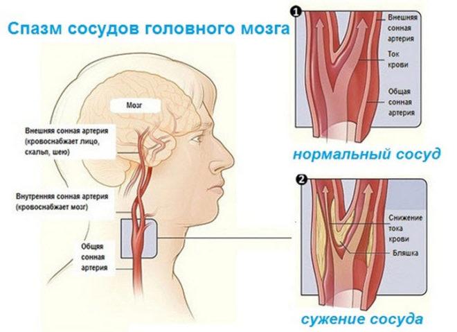 почему после сна болит голова